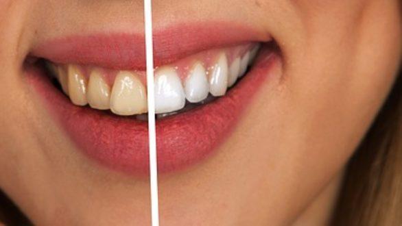 Que faut-il faire pour avoir des dents blanches?