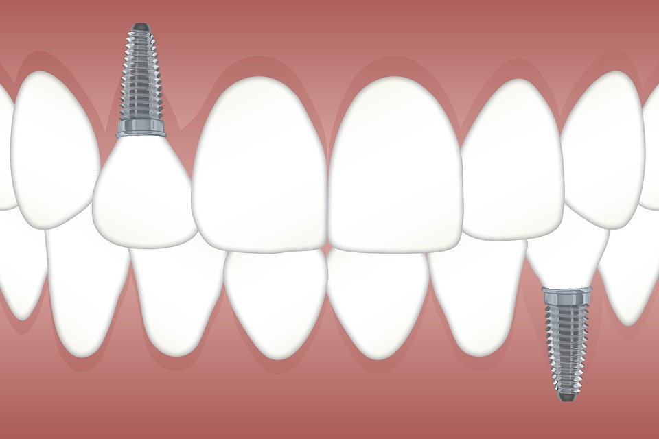 Quels sont les avantages du tourisme dentaire ?